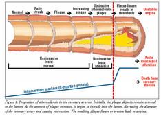 Betabloccanti riducono la mortalità nella angina cronica stabile