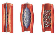 Betabloccanti migliorano l'outcome dopo angioplastica primaria