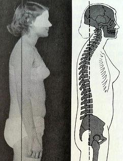 일산골반교정
