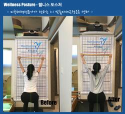 웰니스포스처-자세교정 전/후