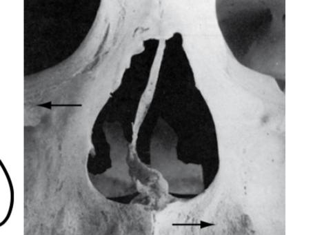 코휘어짐- 턱관절내의 근육과의 관계에서의 밸런스운동
