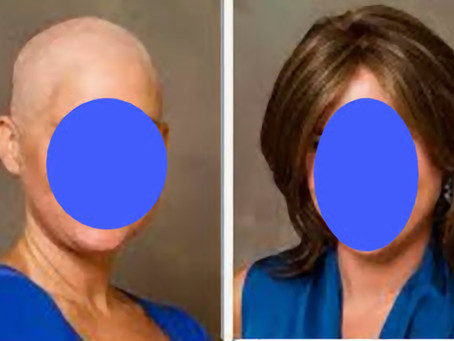 Going Through Chemo… Let Us Help You Feel and Look Like You