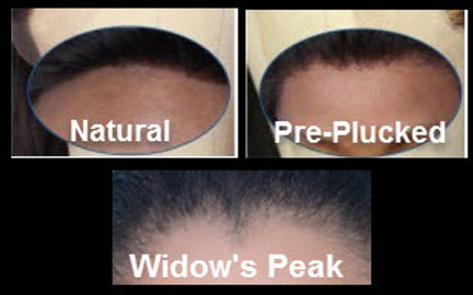 Hairline styles