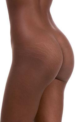 stretch-marks-on-human-1524588656.jpg