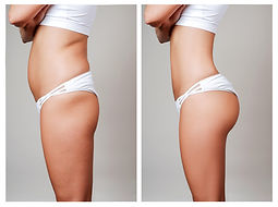 Tummy-Tuck-In-Winnipeg-Dr.-Avi-Islur.jpe