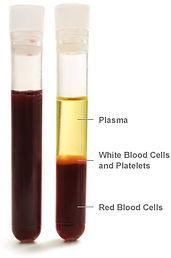 blood_parts_vial.jpg