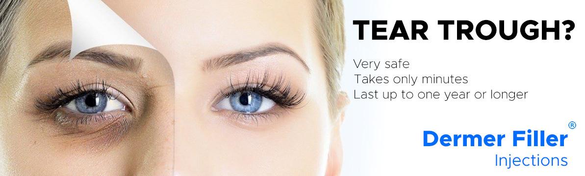 Tear Trough?