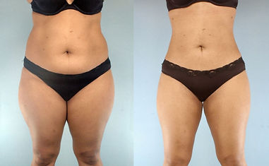 Liposuction-in-Houston.jpg