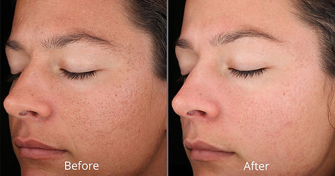 rejuvenize-chemical-peel-before-after-ch