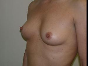 Before Saline Implants2.jpg