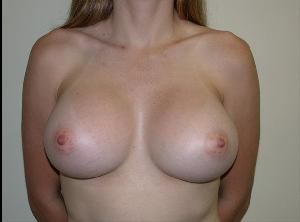After Saline Implants3.jpg