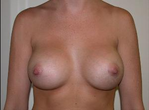 After Saline Implants1.jpg