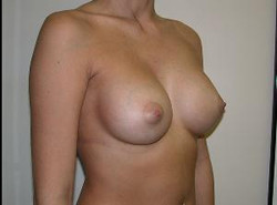 Silicone Implants After1.jpg