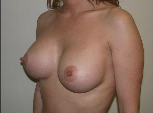 After Saline Implants2.jpg