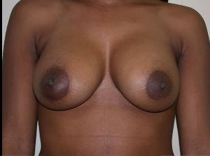 Silicone Implants After2.jpg