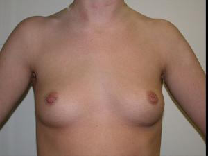 Before Saline Implants1.jpg