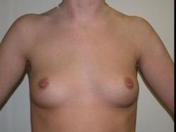 Before Saline Implants1.jpg