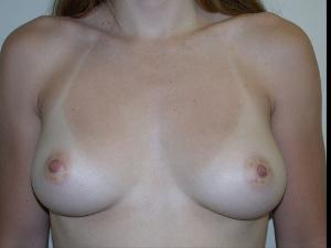 Before Saline Implants3.jpg