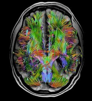 brain-memory-large1.jpg