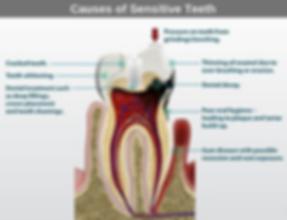 Causes of Sensitive Teeth.png