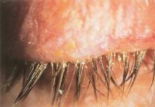 ¿Qué es la blefaritis?