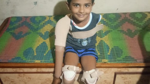 Child without arms and legs gets a new life | Artificial Limbs Seva