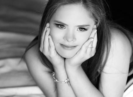 Adolescente com Síndrome de Down se torna modelo de sucesso e influenciadora aos 15 anos de idade