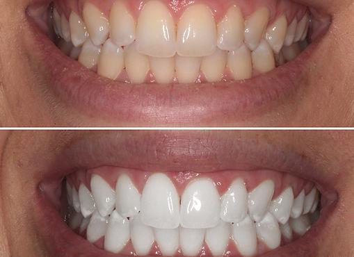 blanchiment dentaire 2.jpg