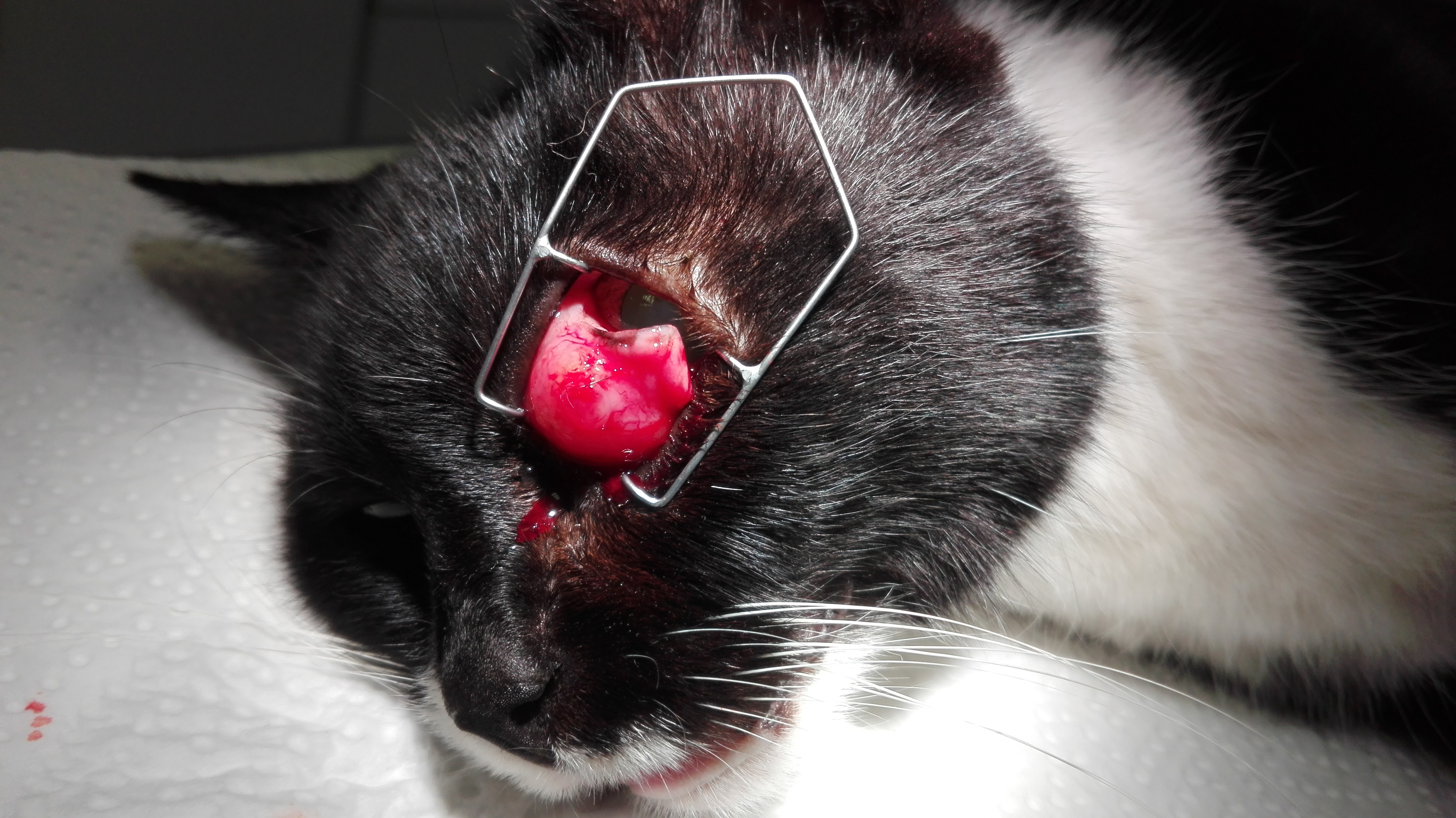 Tumorentfernung am 3. Augenlid