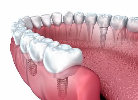 Implant2.webp
