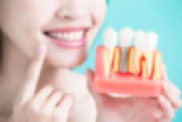 rye-dental-implants.jpg