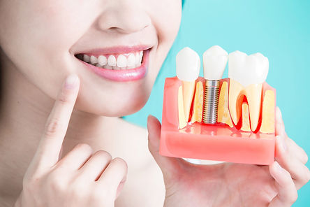 rye-dental-implants.jpg