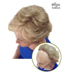 Alopecia frontal.JPG