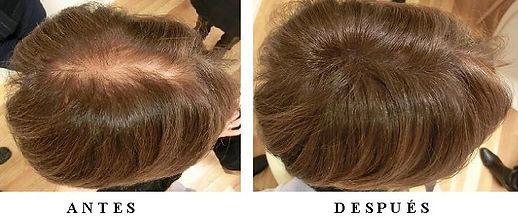 Voluminizadores de cabello natural , prótesis indetectables para mujeres