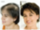 Integracion capilar para alopecia femenina