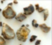 kidney stones fb_edited.jpg