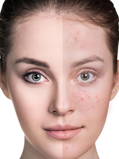 skin problem.jpg