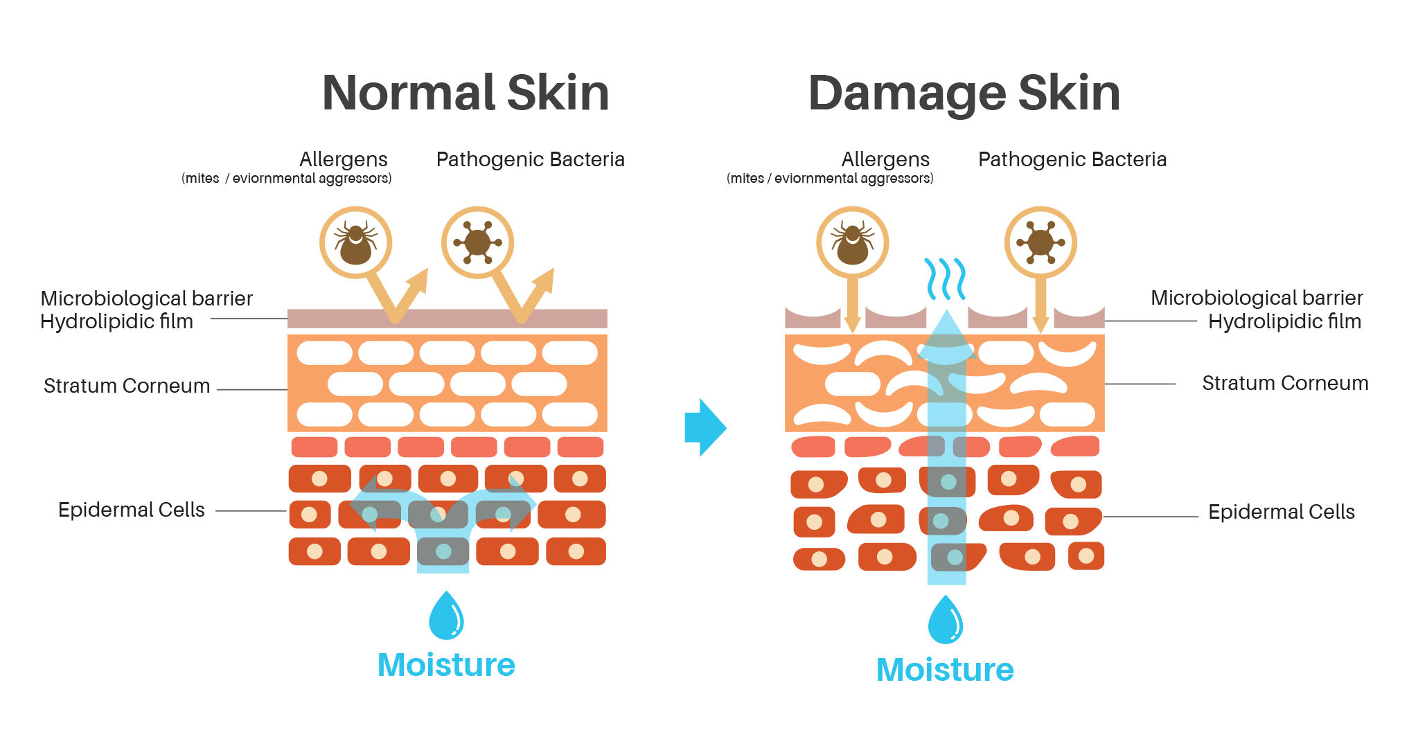 Image result for hydrolipid of skin