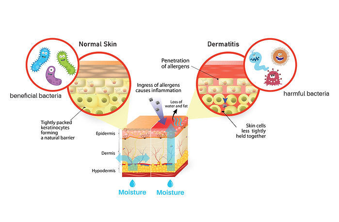 skin barrier problem.jpg