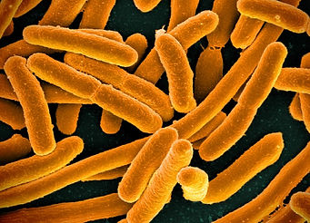 E. coli Bacteria by NIAID Orange.jpg