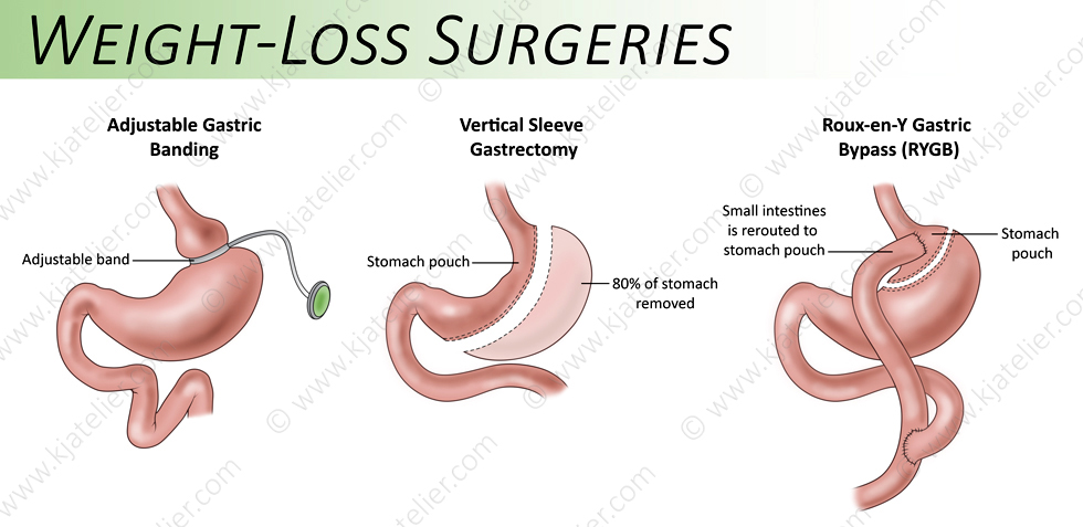 Gastric Surgery Types