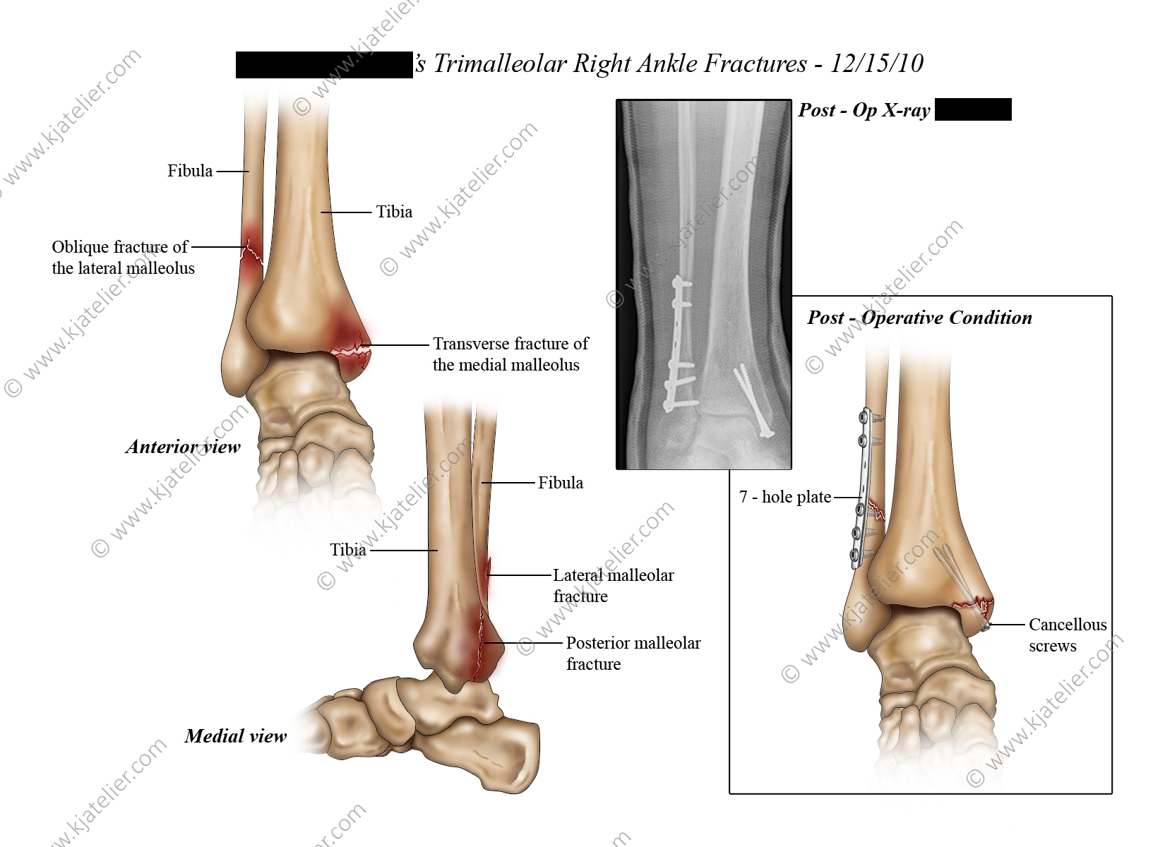 Right Ankle Fractures