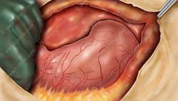 Gastrectomy Procedure