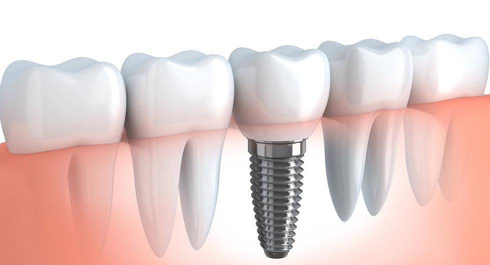dis-implanti-dental-implant-thegem-blog-