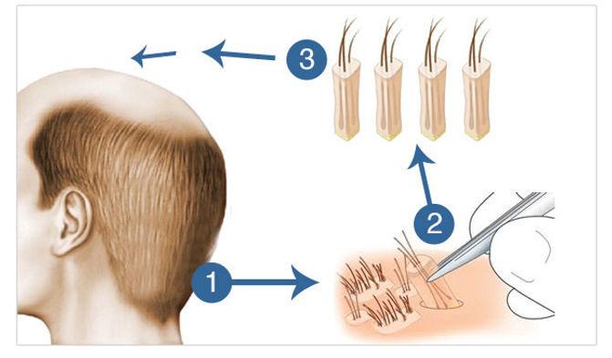 hair_transplant_follicular_unit_extracti