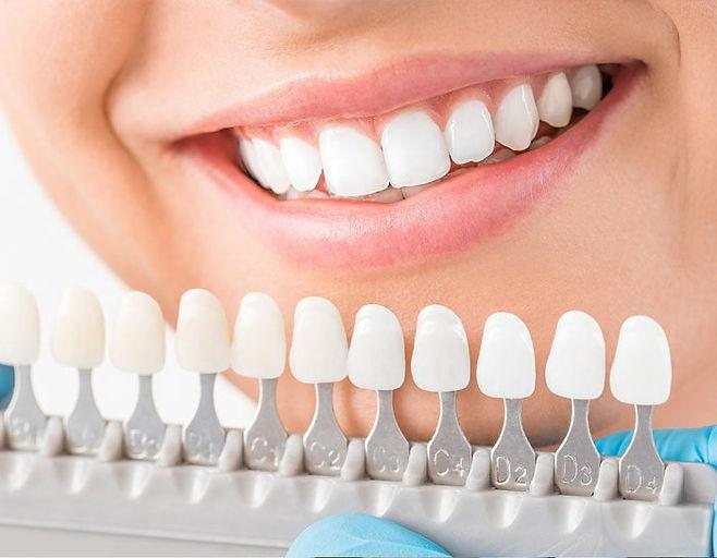 زراعة-الاسنان-في-تركيا-وتكلفتها-3.jpg