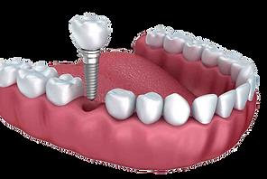 زراعة-الاسنان.png
