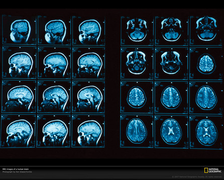 Artificial Intelligence diagnoses Alzheimer's and beats the scientists