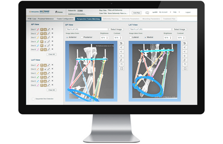 MAXFRAME: The technology that will revolutionise deformity correction