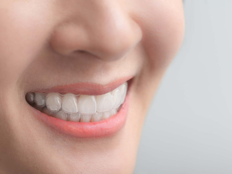 The Ideal Cases to Treat with Clear Aligners